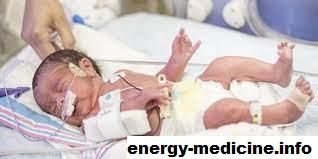 5 Alat Bantu untuk Bayi di NICU Yang Harus Anda Ketahui